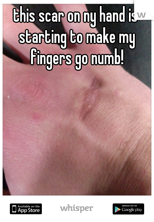 this scar on ny hand is starting to make my fingers go numb!