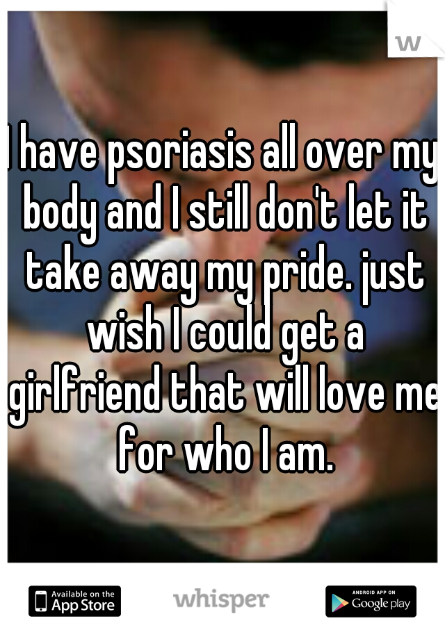 I have psoriasis all over my body and I still don't let it take away my pride. just wish I could get a girlfriend that will love me for who I am.