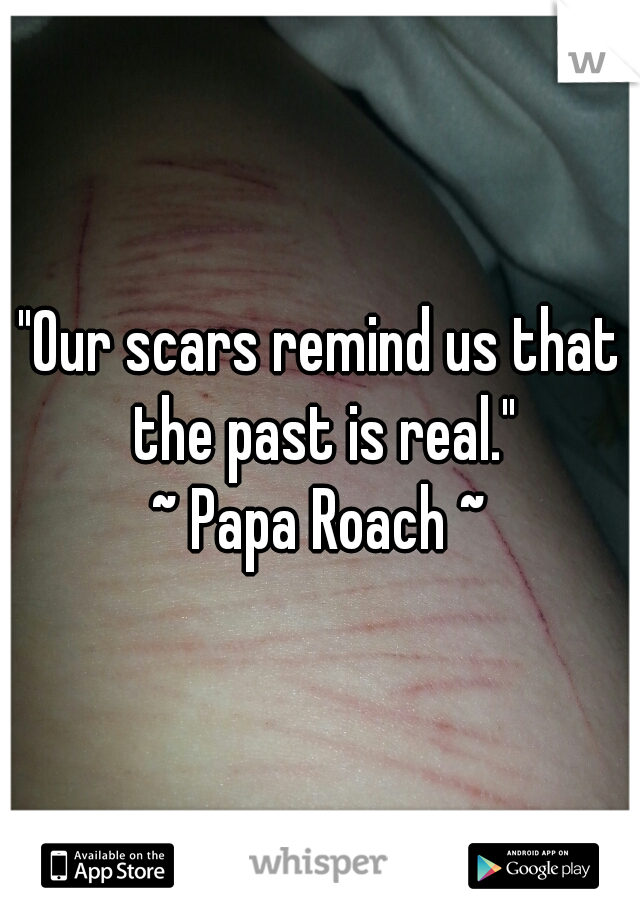 """""""Our scars remind us that the past is real."""" ~ Papa Roach ~"""