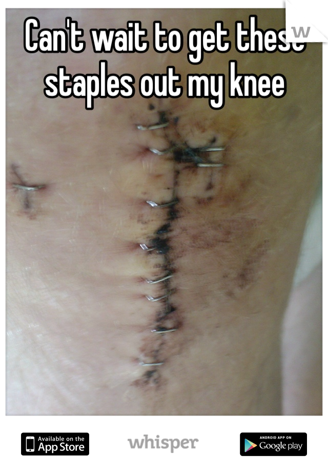 Can't wait to get these staples out my knee
