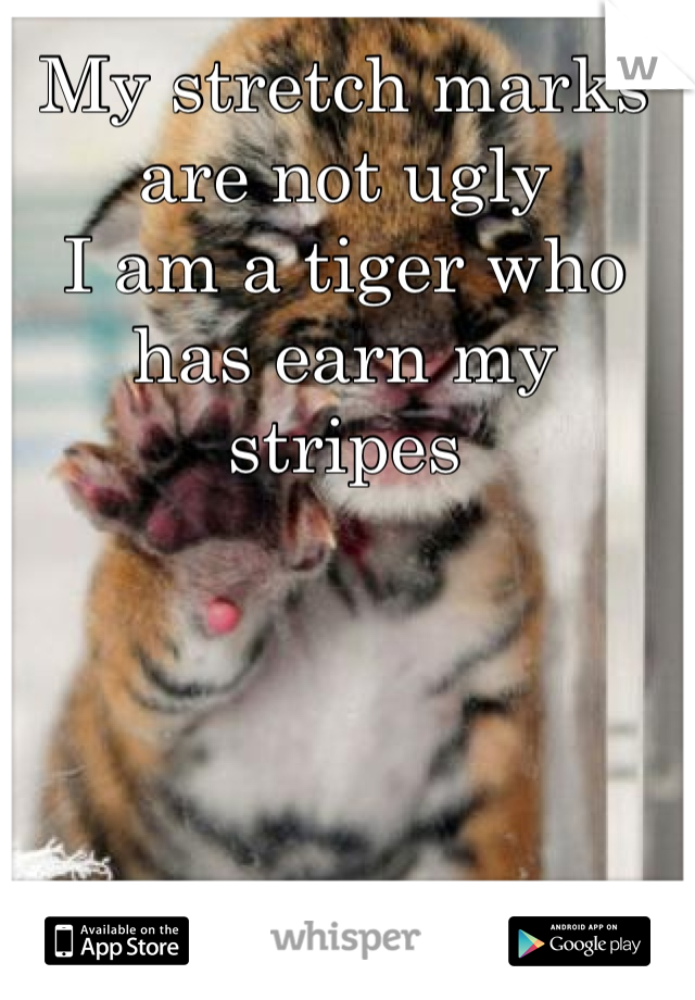 My stretch marks are not ugly  I am a tiger who has earn my stripes