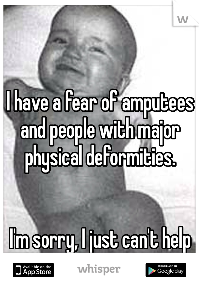 I have a fear of amputees and people with major physical deformities.    I'm sorry, I just can't help it.
