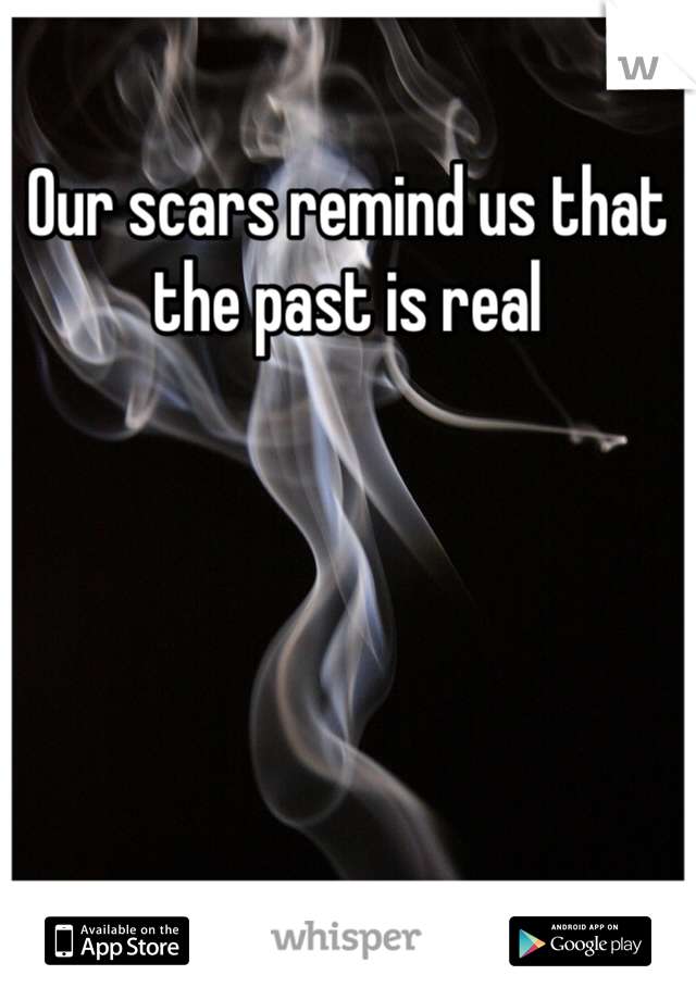 Our scars remind us that the past is real