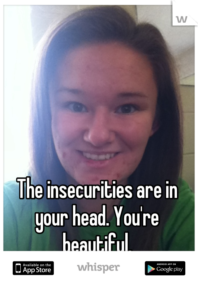 The insecurities are in your head. You're beautiful.