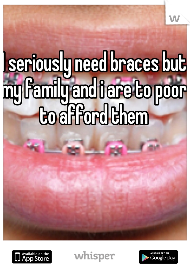 I seriously need braces but my family and i are to poor to afford them