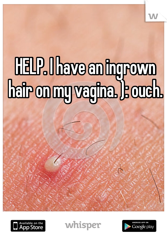 HELP. I have an ingrown hair on my vagina. ): ouch.