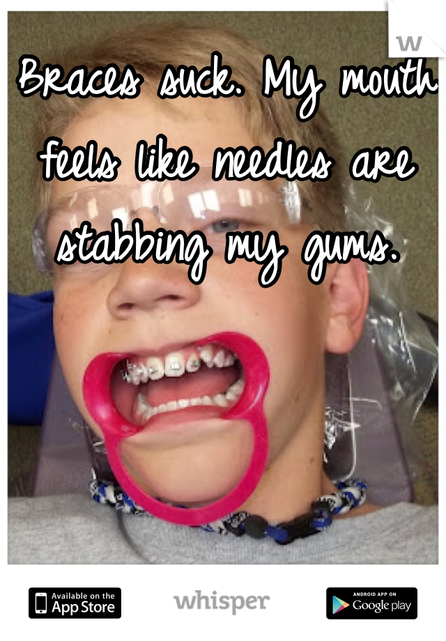 Braces suck. My mouth feels like needles are stabbing my gums.