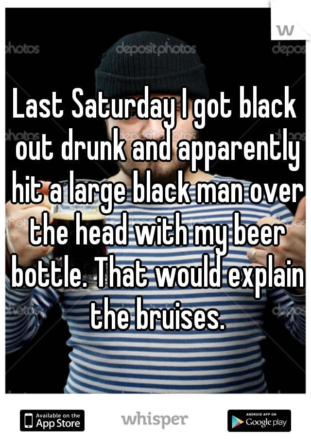 Last Saturday I got black out drunk and apparently hit a large black man over the head with my beer bottle. That would explain the bruises.