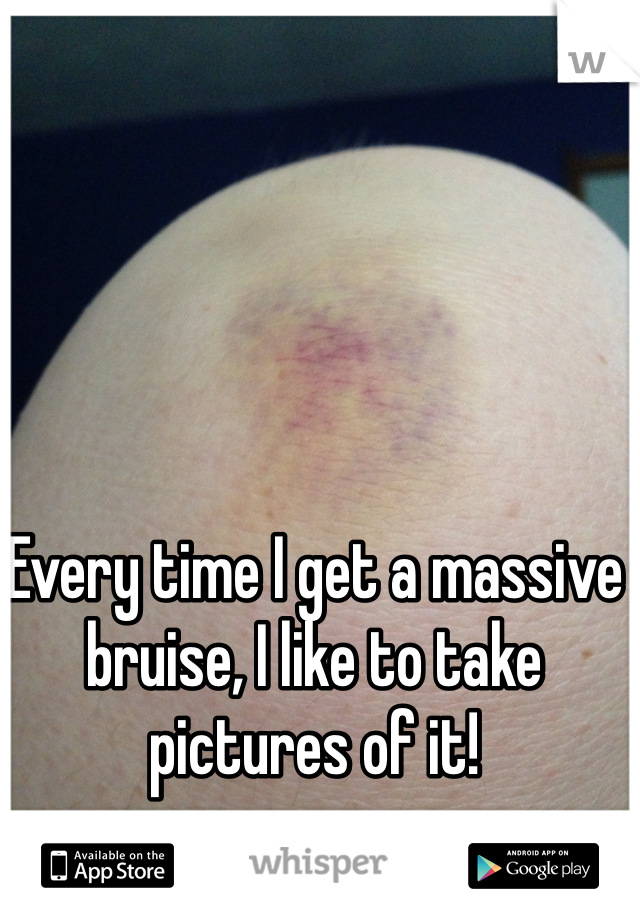 Every time I get a massive bruise, I like to take pictures of it!