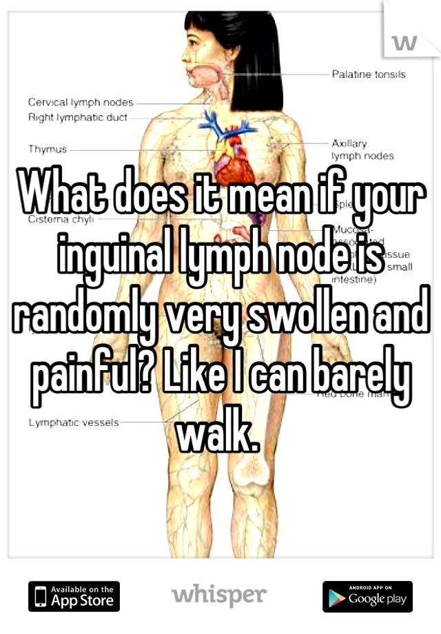 What does it mean if your inguinal lymph node is randomly very swollen and painful? Like I can barely walk.