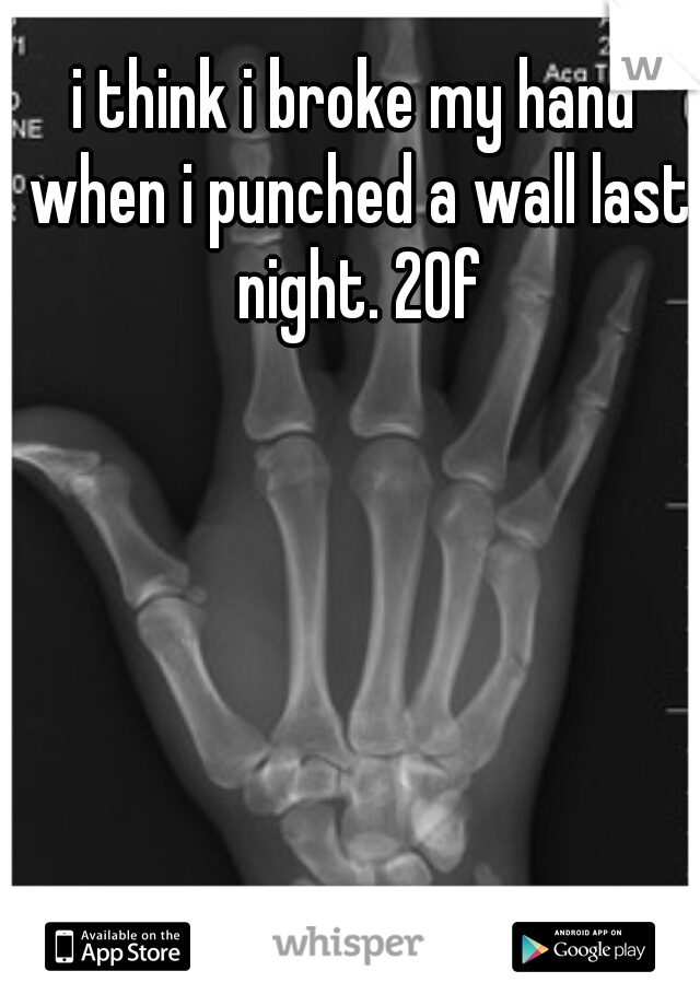 i think i broke my hand when i punched a wall last night. 20f