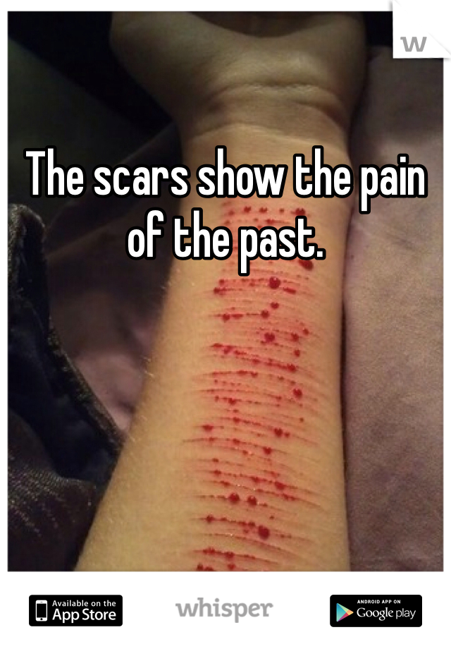The scars show the pain of the past.