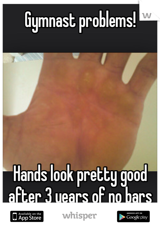 Gymnast problems!        Hands look pretty good after 3 years of no bars