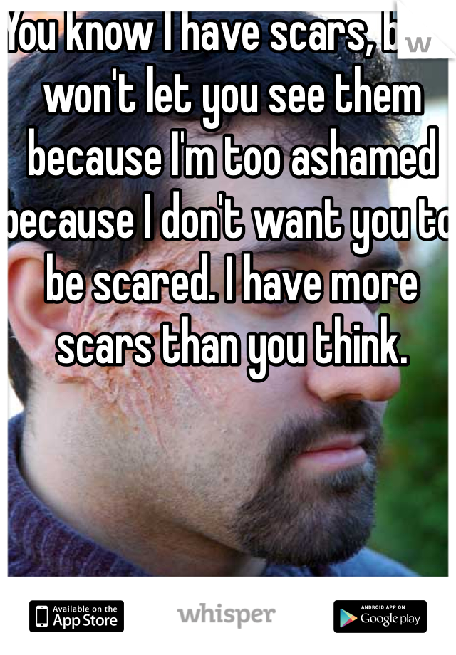 You know I have scars, but I won't let you see them because I'm too ashamed because I don't want you to be scared. I have more scars than you think.