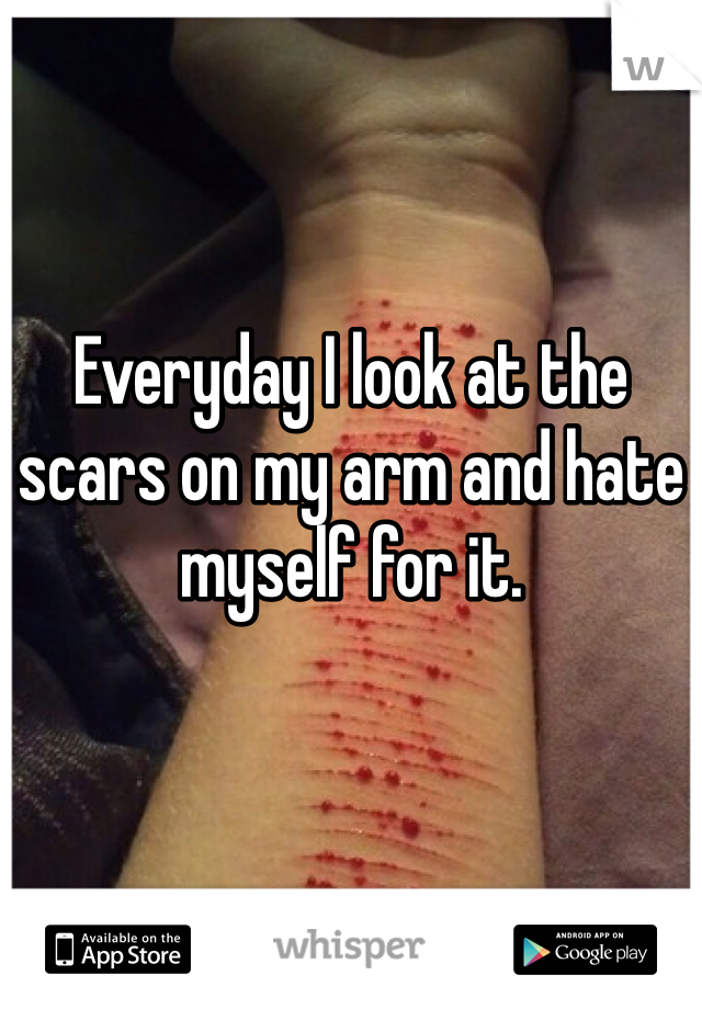 Everyday I look at the scars on my arm and hate myself for it.