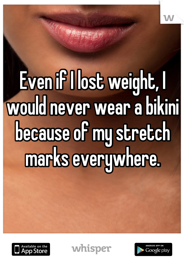 Even if I lost weight, I would never wear a bikini because of my stretch marks everywhere.
