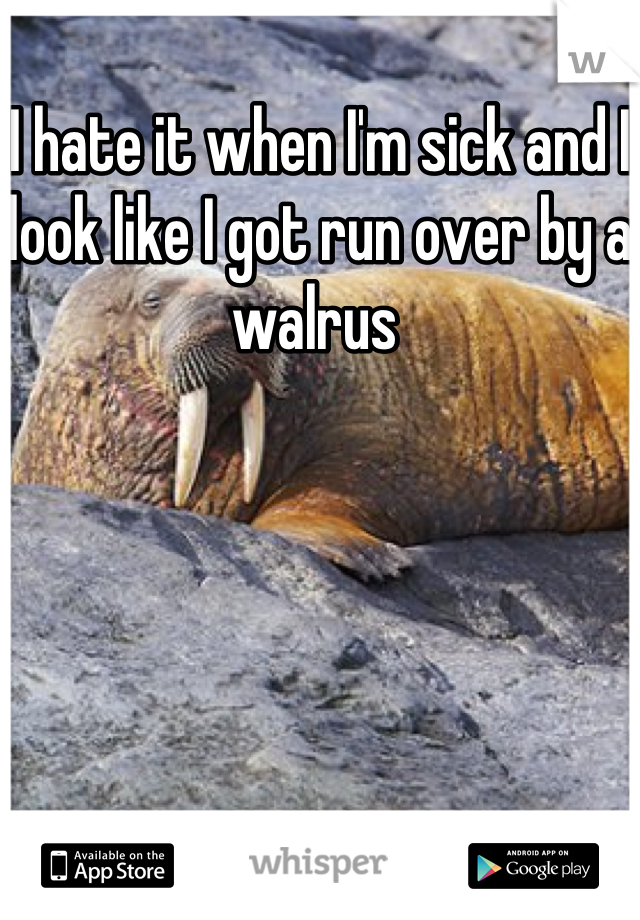 I hate it when I'm sick and I look like I got run over by a walrus