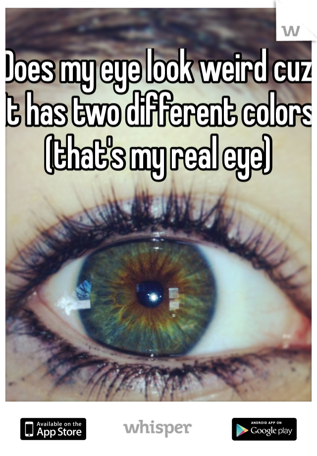 Does my eye look weird cuz It has two different colors (that's my real eye)