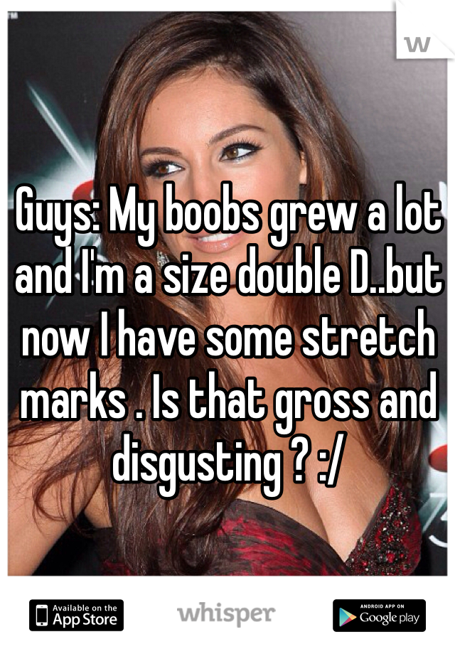 Guys: My boobs grew a lot and I'm a size double D..but now I have some stretch marks . Is that gross and disgusting ? :/