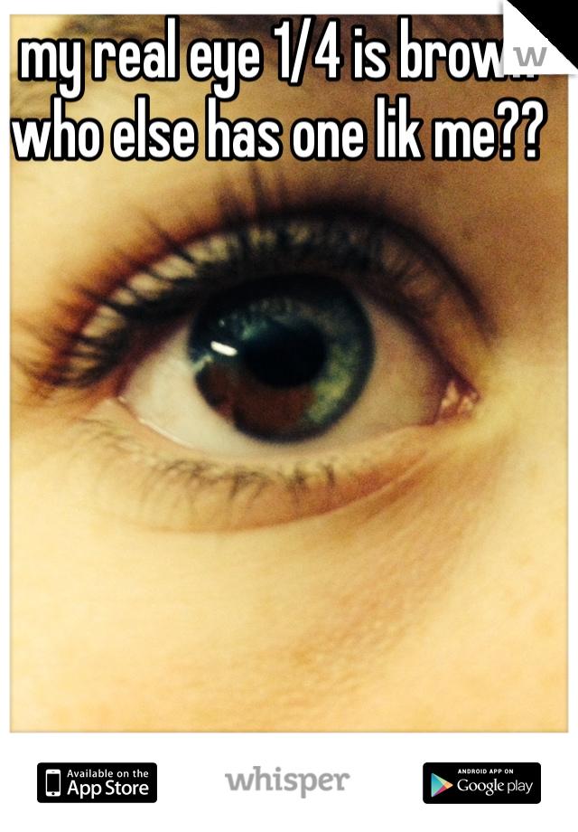 my real eye 1/4 is brown who else has one lik me??