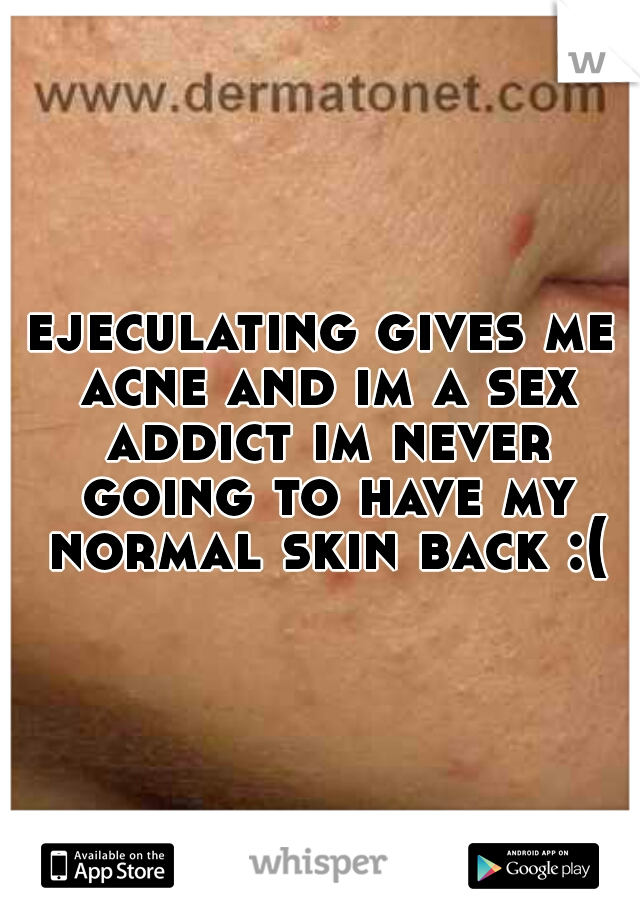 ejeculating gives me acne and im a sex addict im never going to have my normal skin back :(