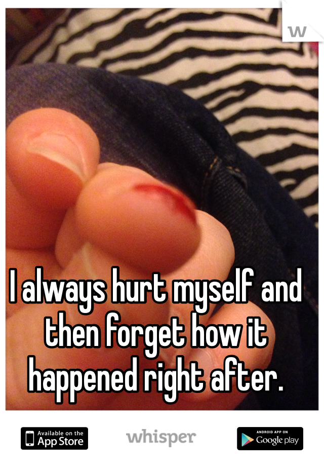 I always hurt myself and then forget how it happened right after.
