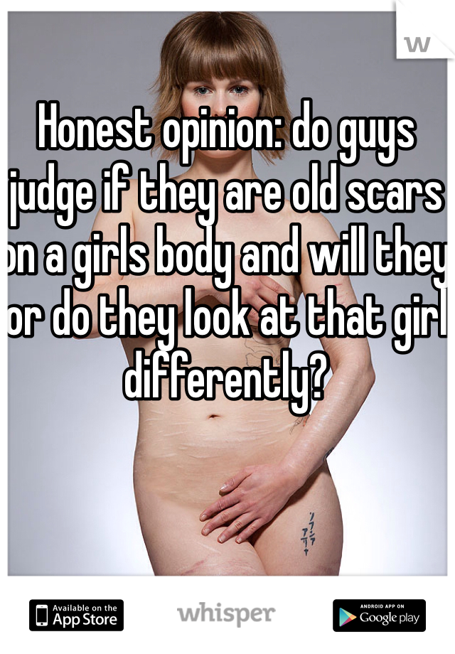 Honest opinion: do guys judge if they are old scars on a girls body and will they or do they look at that girl differently?