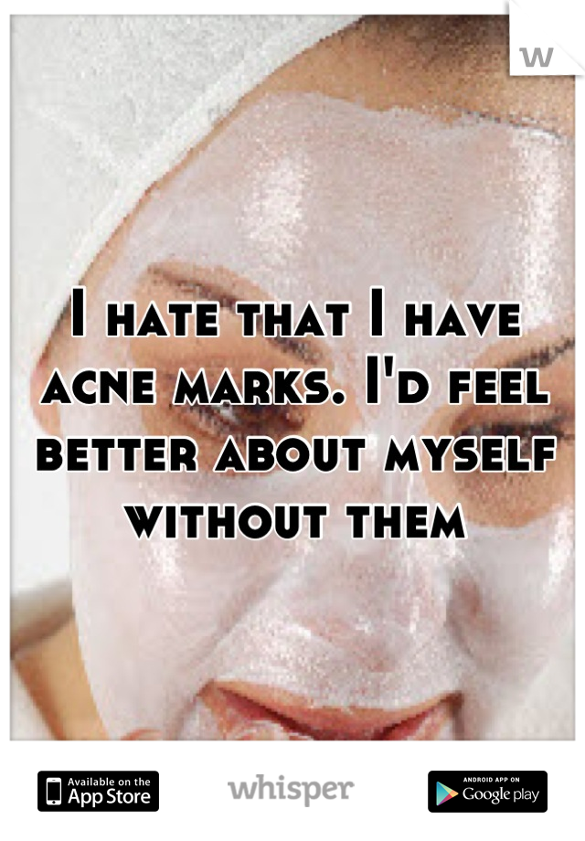I hate that I have acne marks. I'd feel better about myself without them