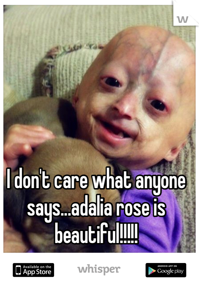I don't care what anyone says...adalia rose is beautiful!!!!!