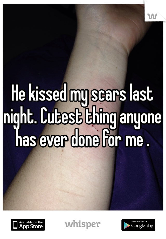 He kissed my scars last night. Cutest thing anyone has ever done for me .