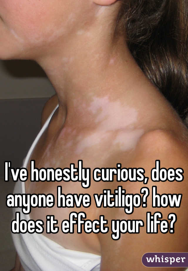 I've honestly curious, does anyone have vitiligo? how does it effect your life?