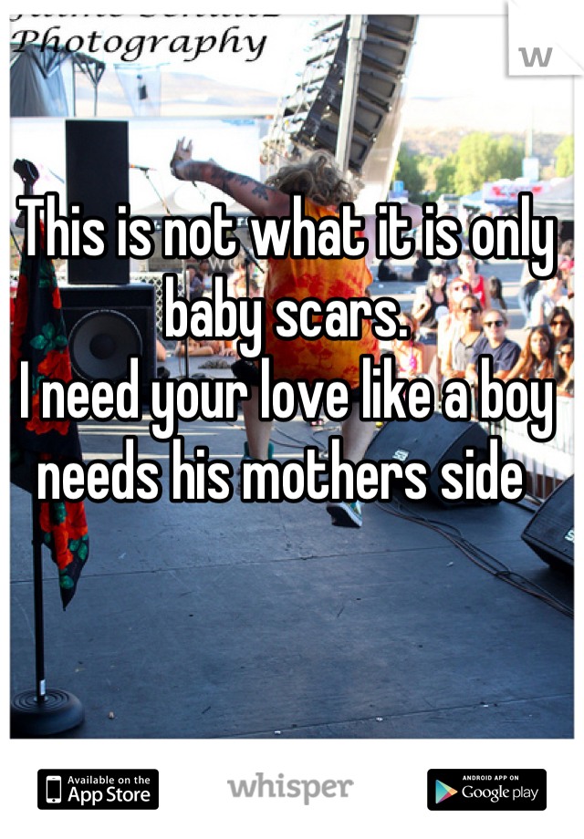 This is not what it is only baby scars.  I need your love like a boy needs his mothers side