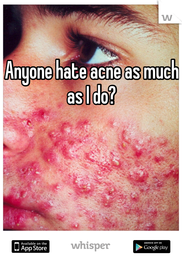 Anyone hate acne as much as I do?