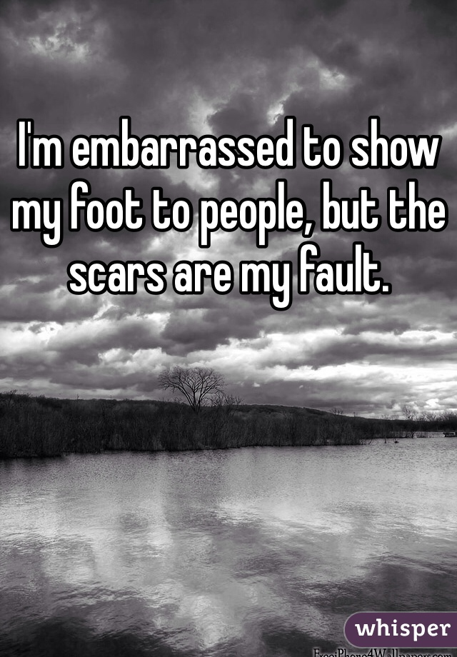 I'm embarrassed to show my foot to people, but the scars are my fault.