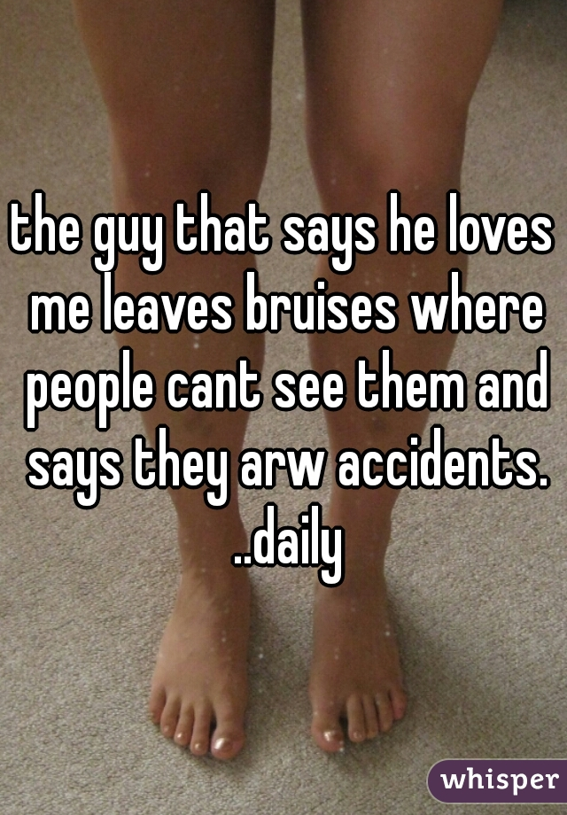 the guy that says he loves me leaves bruises where people cant see them and says they arw accidents. ..daily
