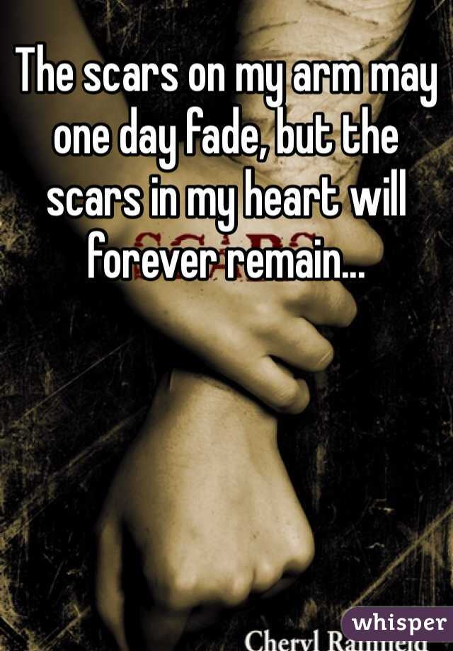 The scars on my arm may one day fade, but the scars in my heart will forever remain...