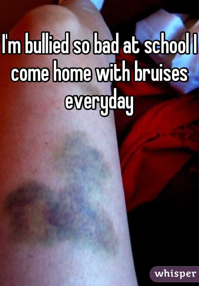 I'm bullied so bad at school I come home with bruises everyday