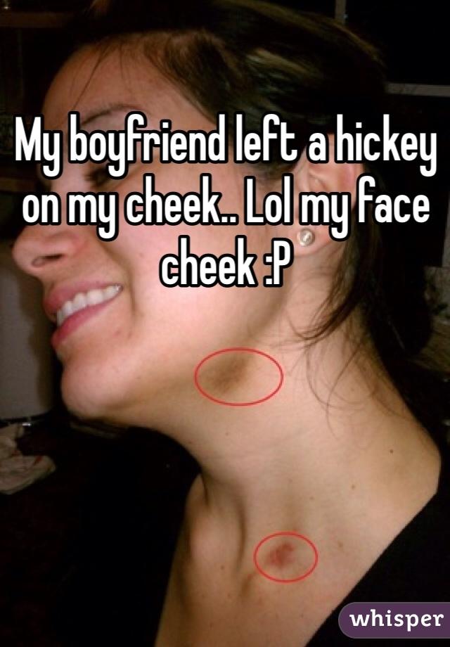 My boyfriend left a hickey on my cheek.. Lol my face cheek :P