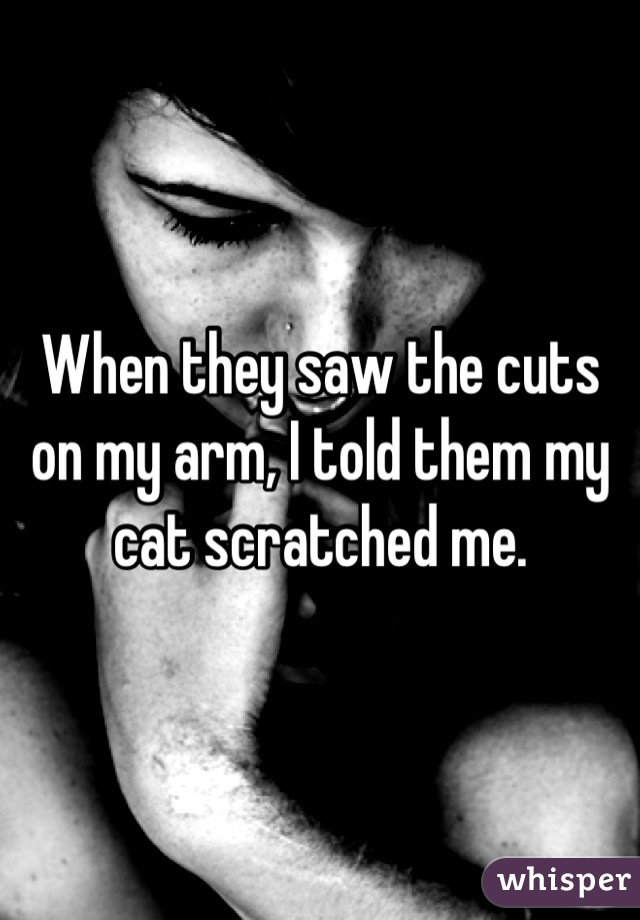 When they saw the cuts on my arm, I told them my cat scratched me.