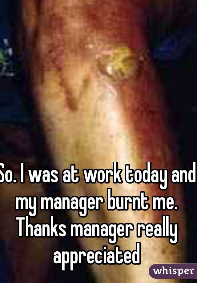 So. I was at work today and my manager burnt me. Thanks manager really appreciated