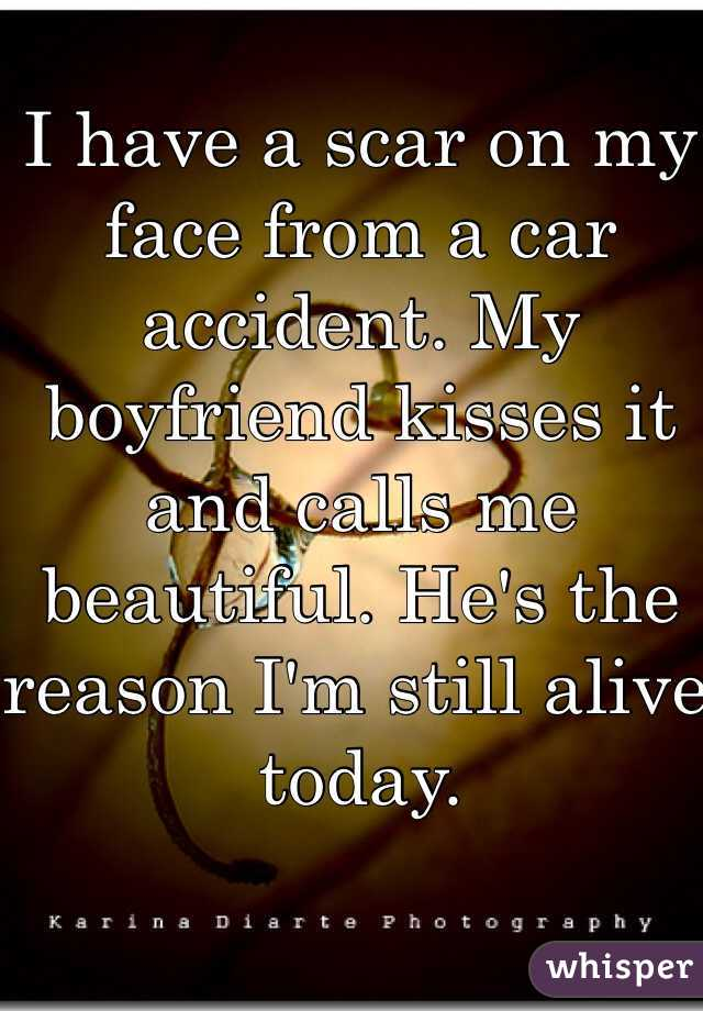 I have a scar on my face from a car accident. My boyfriend kisses it and calls me beautiful. He's the reason I'm still alive today.