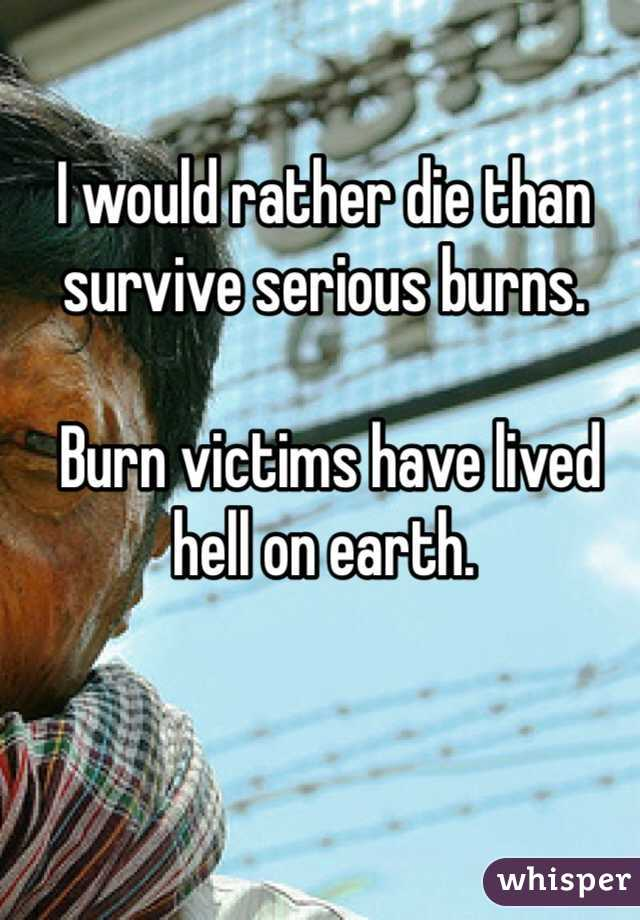 I would rather die than survive serious burns.   Burn victims have lived hell on earth.