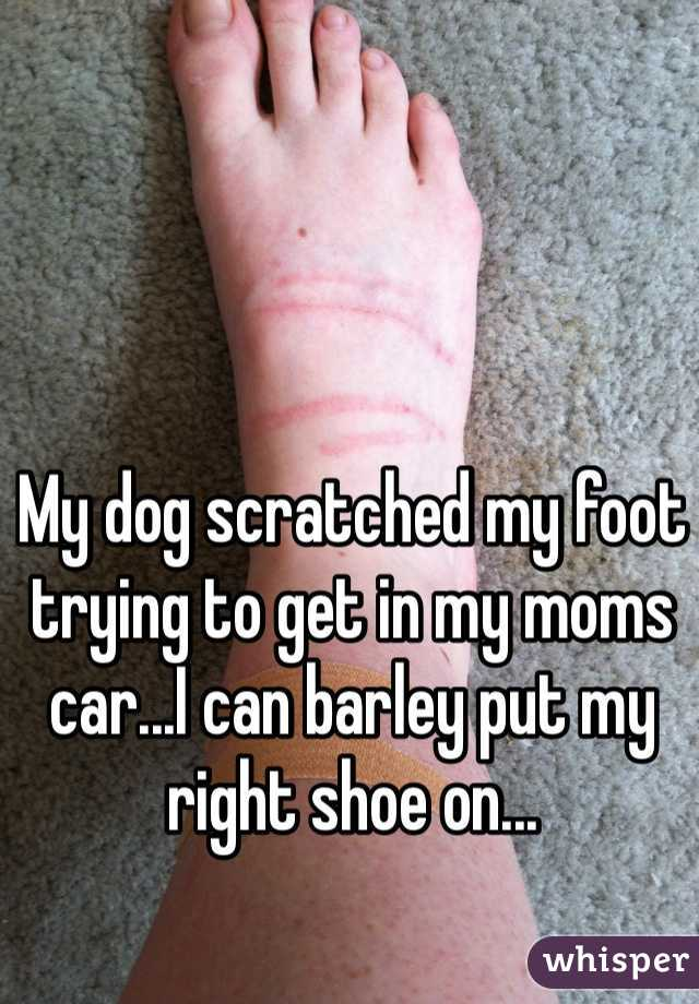 My dog scratched my foot trying to get in my moms car...I can barley put my right shoe on...