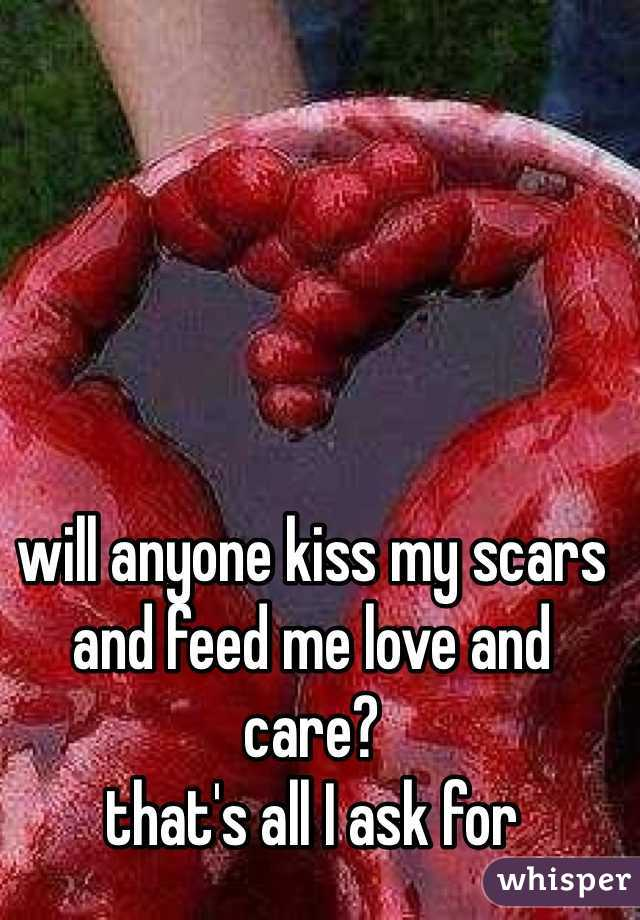 will anyone kiss my scars and feed me love and care?  that's all I ask for