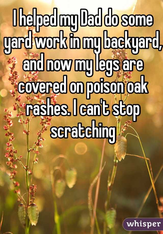 I helped my Dad do some yard work in my backyard, and now my legs are covered on poison oak rashes. I can't stop scratching