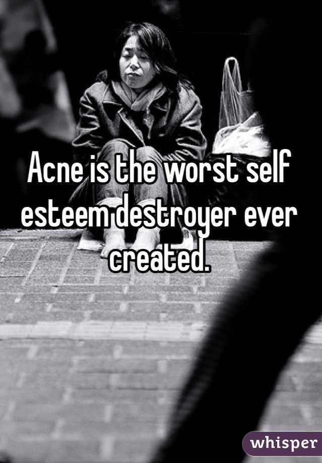 Acne is the worst self esteem destroyer ever created.
