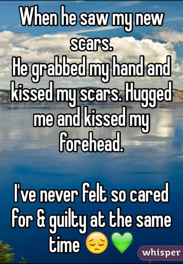 When he saw my new scars.  He grabbed my hand and kissed my scars. Hugged me and kissed my forehead.   I've never felt so cared for & guilty at the same time 😔💚
