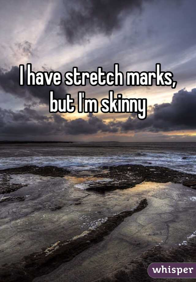 I have stretch marks,  but I'm skinny