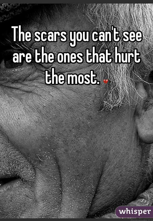 The scars you can't see are the ones that hurt the most. 💔