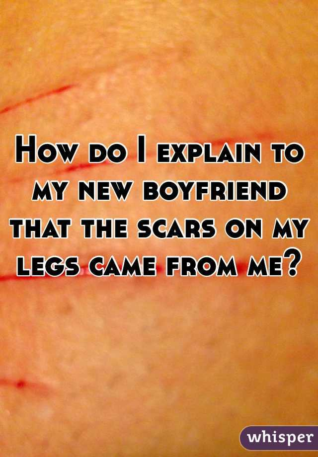 How do I explain to my new boyfriend that the scars on my legs came from me?